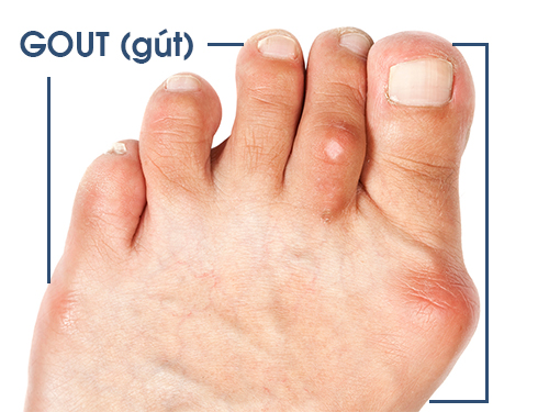 Axit uric bao nhiêu thì bị gout?