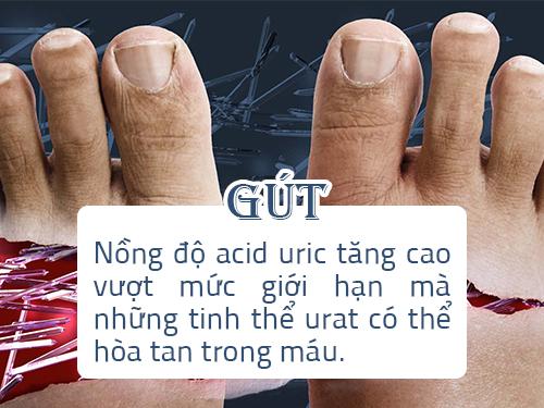 Bài thuốc dân gian chữa bệnh gout