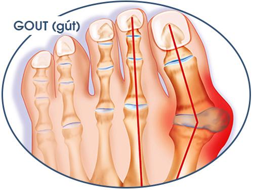 Bài thuốc chữa bệnh gout hiệu quả