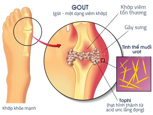 Bệnh gout cần kiêng những gì?