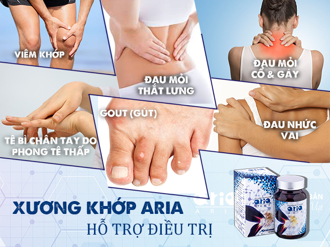 Có nên sử dụng Xương khớp Aria hỗ trợ điều trị viêm khớp - hỗ trợ trị bệnh